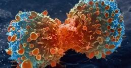 Раковите заболявания се увеличават в страните с ниски доходи, приемащи западния начин на живот