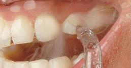 Орален душ – модерна алтернатива за здрави зъби и венци