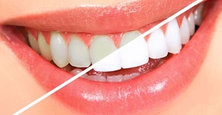 Избелете зъбите си по естествен начин, без химикали